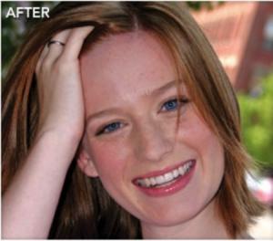 after-braces