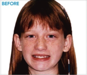 before-braces