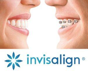 Sky Ortho: Orthodontist OKC - Best Invisalign & Braces Moore
