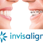 Invisible & Clear Braces in Oklahoma