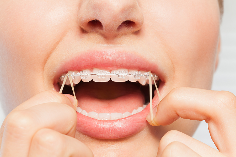 Malocclusion Of Teeth And How Elastic Bands Help Correct It